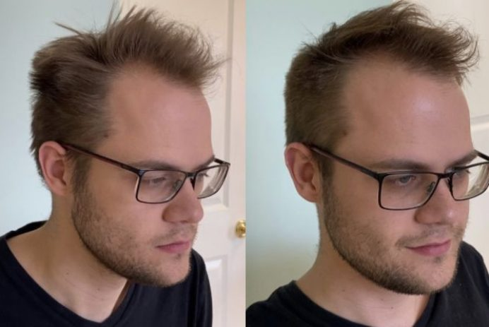 Haircut before and after