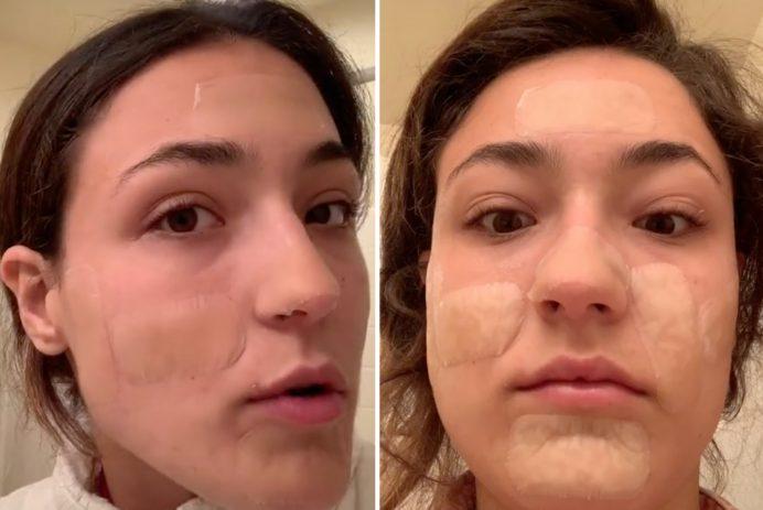 hydrocolloid bandages acne