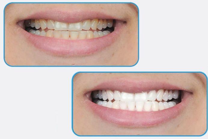 GO SMILE teeth-whitening pen